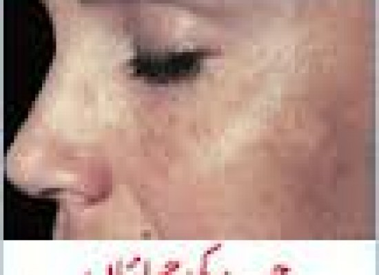Face Blackheads Removal Tips Zubaida Tariq