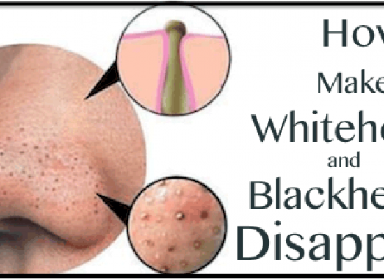 How To Get Rid of Whiteheads and Blackheads Naturally at Home