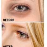 Dark Circles Around Eyes Removal Tips Treatment in Urdu